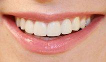 xylitol-health-benefits-to-teeth