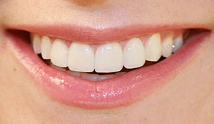 xylitol-health-benefits-to-teeth